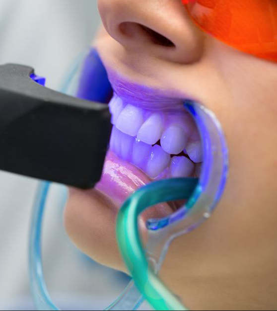 patient getting teeth exposed to laser radiation for teeth whitening